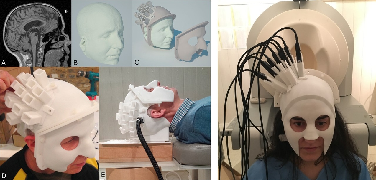 Картинки по запросу Moving magnetoencephalography QuSpin